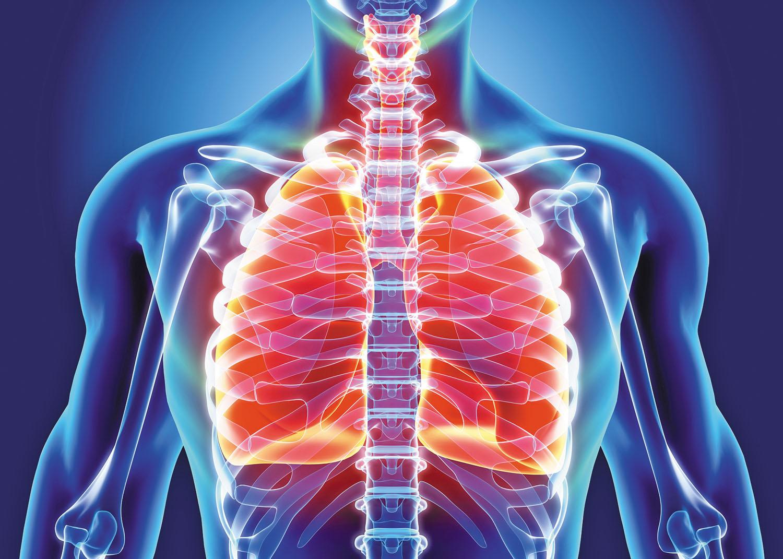 bronchitis treatment options